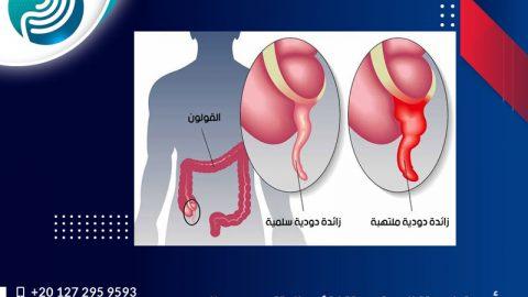 أعراض التهاب الزائدة الدودية الحاد الأرشيف - د.إبراهيم ...
