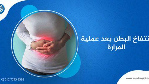 انتفاخ البطن بعد عملية المرارة