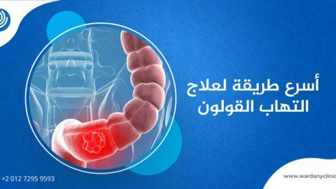 أسرع طريقة لعلاج التهاب القولون